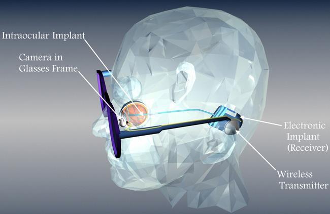 occhi bionici