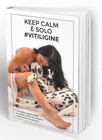 KEEP CALM È' SOLO #VITILIGINE 2